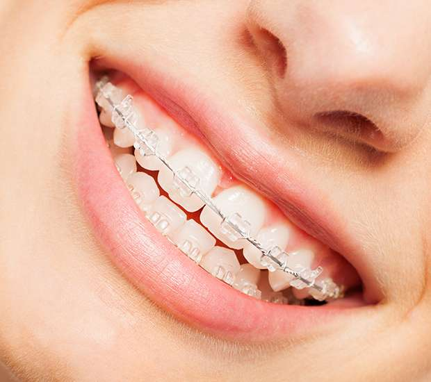 Des Moines Invisible Orthodontics
