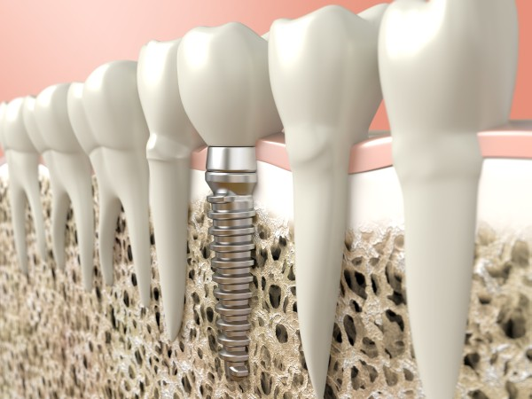 Are Titanium Dental Implant Posts Safe?