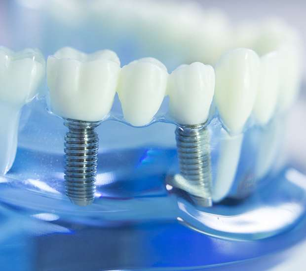 Des Moines Dental Implants