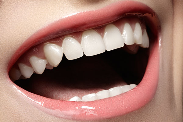 Why You Should Visit A Dentist Office For Veneers