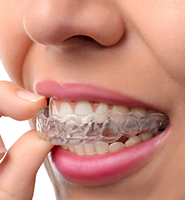 Clear Aligners - Teeth Straightening Des Moines, WA