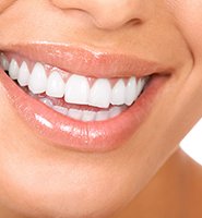 Teeth Whitening Services Des Moines, WA